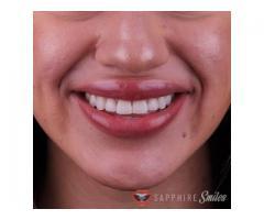 Sapphire Smiles Dental in Houston, TX